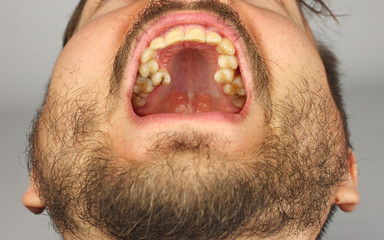 man with a beard opened his mouth for dental examination of upper teeth, closeup