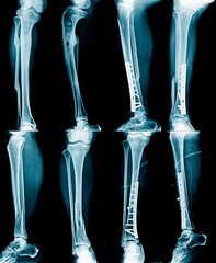 collection leg xray, fracture and leg fixed
