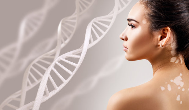 Young sensual woman with vitiligo disease in DNA chains.