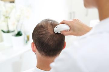 Badanie trychologiczne. Głowa mężczyzny z przerzedzonymi włosami podczas badania skóry głowy i włosów mikroskopem