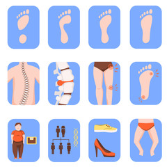Fallen arches or flat foot icons set isolated on white background. Orthopedic disease, causes and symptoms. Health care concept. Color vector illustration