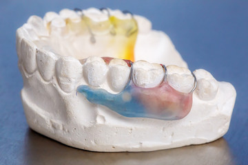 Colorful dental braces or retainer, clay human gums model
