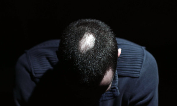 Desperate Young Man Touch His Bald Patches