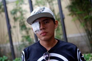Pedro Gaitan, who lost his eye in recent protests against Nicaraguan President Daniel Ortega's government, is pictured in Managua