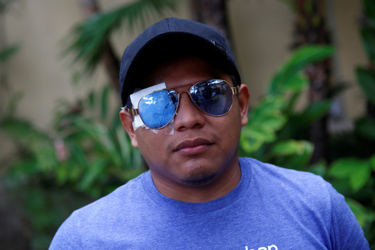 Abner Davila, who lost his eye in recent protests against Nicaraguan President Daniel Ortega's government, is pictured in Managua