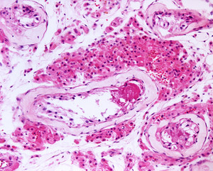 Leydig cells. Klinefelter syndrome