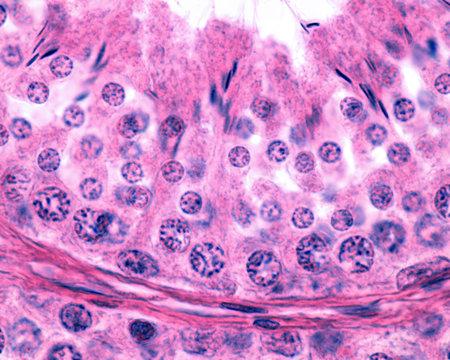 Male germinal epithelium. Spermatogenesis