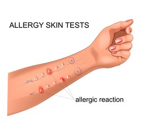 scarification tests for allergies