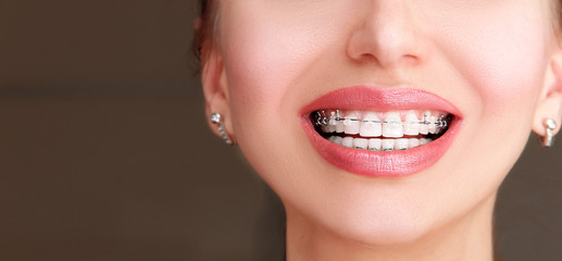 Braces on Teeth. Beautiful Female Smile with Self-ligating Braces. Orthodontic Treatment.