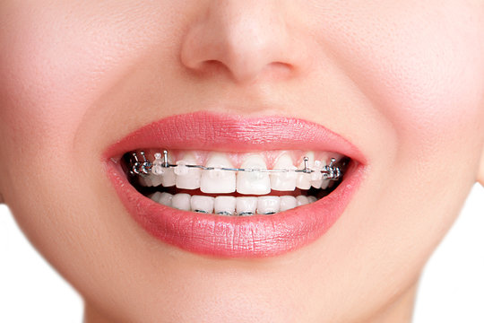 Closeup Ceramic and Metal Braces on Teeth. Beautiful Female Smile with clear Braces. Orthodontic Treatment.