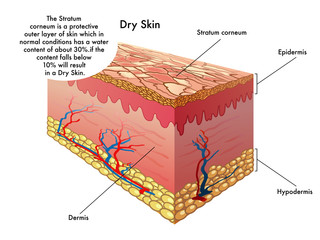 vector medical illustration of the effects of dry skin