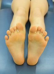 Young caucasian patient's feet on table in office