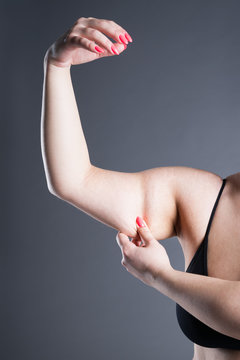 Fat and cellulite removal concept, overweight female hand