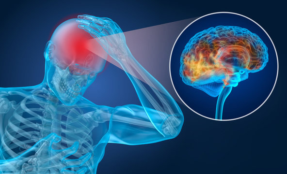 Head pain Attack, man suffering from brain pain. 3D illustration