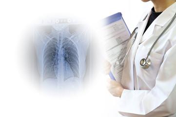 医療イメージ 画像診断