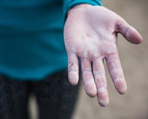 Rock climber showing hand