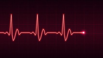 Electrocardiogram, heart rhythm