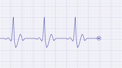Blue line of heart rate