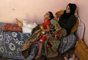 Palestinian Assma Abu Dakah, 23, who was wounded by Israeli troops in recent protests at the Israel-Gaza border, combs her daughter's hair at their house in the southern Gaza Strip