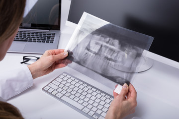 Dentist Holding Teeth X-ray