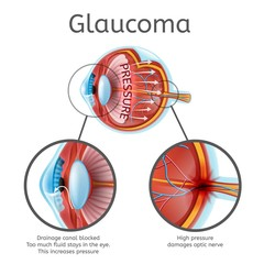 Glaucoma Vector Schema or Chart with Eyeball Internal Structure Illustration, Disease Cause and Damages Mechanism Explanations on White Background. Age Related Eyesight Problem, Vision Loss Diagram