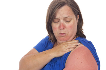 A woman looking at the extent of her sunburn.