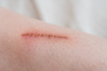Very close up of painful wound