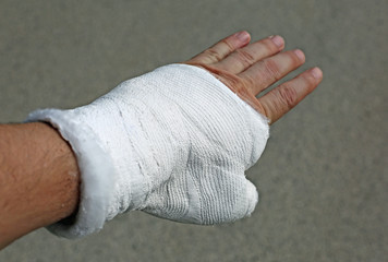 Man with a Plaster. Broken hand and