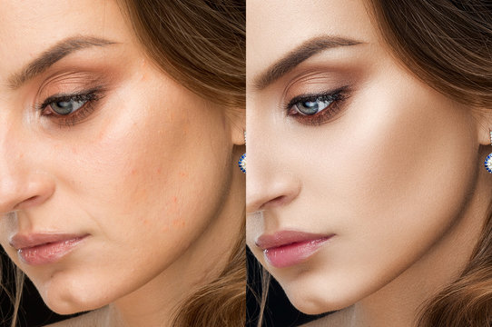 Retouch face of beautiful brunette woman before and after.