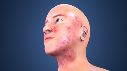 3d illustration of acne on skin face, note select focus with shallow depth of field