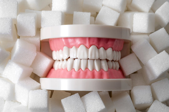 Oral health, tooth decay and sugar destroys the tooth enamel concept with plastic medical model of teeth or dentures surrounded by white sugar cubes