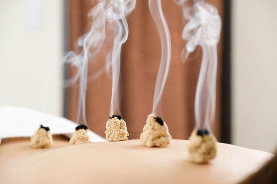 明るい鍼灸院で女性の背中に置かれた煙が出ているお灸