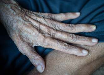 Old Asian female hands full of freckles and wrinkles / Aging concept