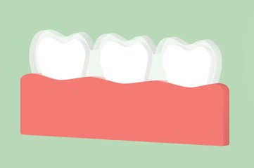 teeth wear silicone trainer or invisible braces