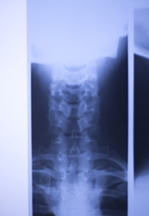 Medical xray spine neck scan