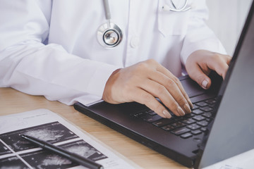 female doctor hand typing on computer laptop checking on the file information of patient with x-ray medical picture on desk