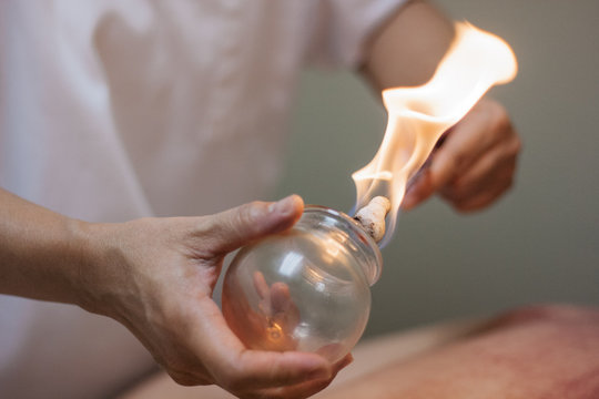Woman preparing glass cup with flame for cupping therapy for pain relief