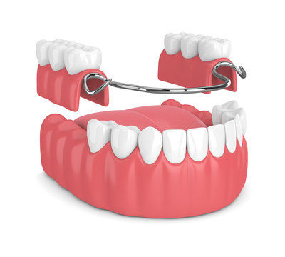 3d render of removable partial denture