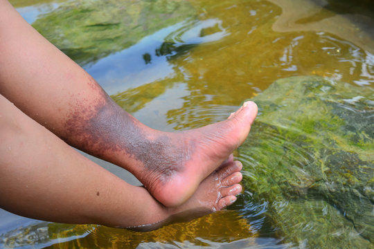 Natural hot spring relieves blood circulation, de-stressing, chronic pain, solving skin conditions, heals Deep Vein Thrombosis problems on female legs.