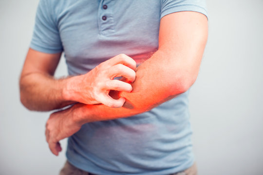 People scratch the itch with hand, Elbow, itching, Healthcare And Medicine, Men with skin problem concept