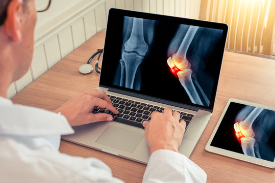 Doctor watching a laptop with x-ray with pain relief on a knee in a medical office