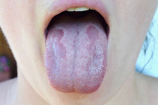 Oral Candidiasis or  Oral trush ( Candida albicans), yeast infection on the human tongue close up, common side effect when using antibiotics or another medicaments