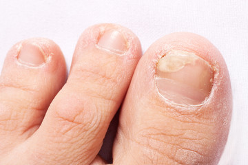 fungal nail infection (Onychomycosis). dry coarse skin of the legs (eczema)