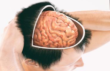 Dementia, Alzheimer - Picture 1 of 2 - 3D Rendering