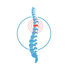 Vector human spine with pain