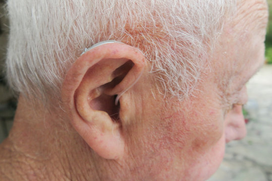 Modern digital in the ear hearing aid for deafness hard of senior patient