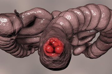 Hemorrhoids, bottom view of hemorrhoic nodules inside anus, large and small intestine are also shown, 3D illustration