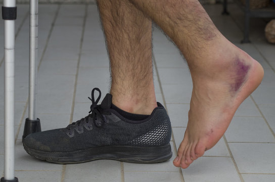 Ankle sprain after a volleyball match