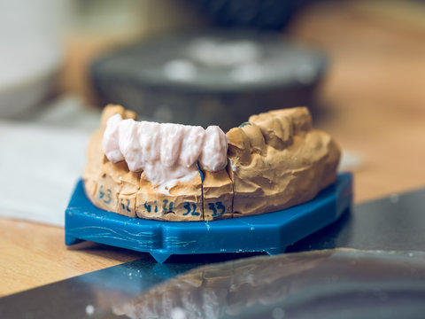 Denture on table
