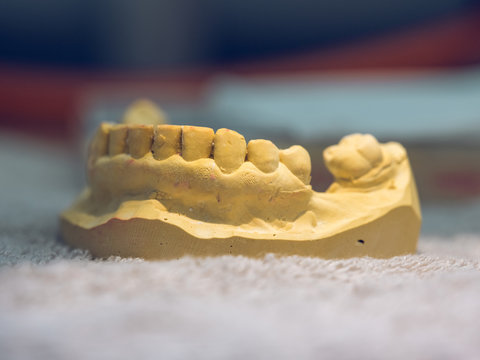 Close-up mold for denture